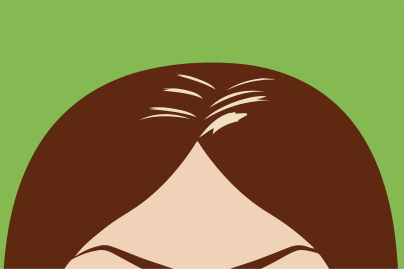The top of a women's hair and forehead to show causes of hair loss